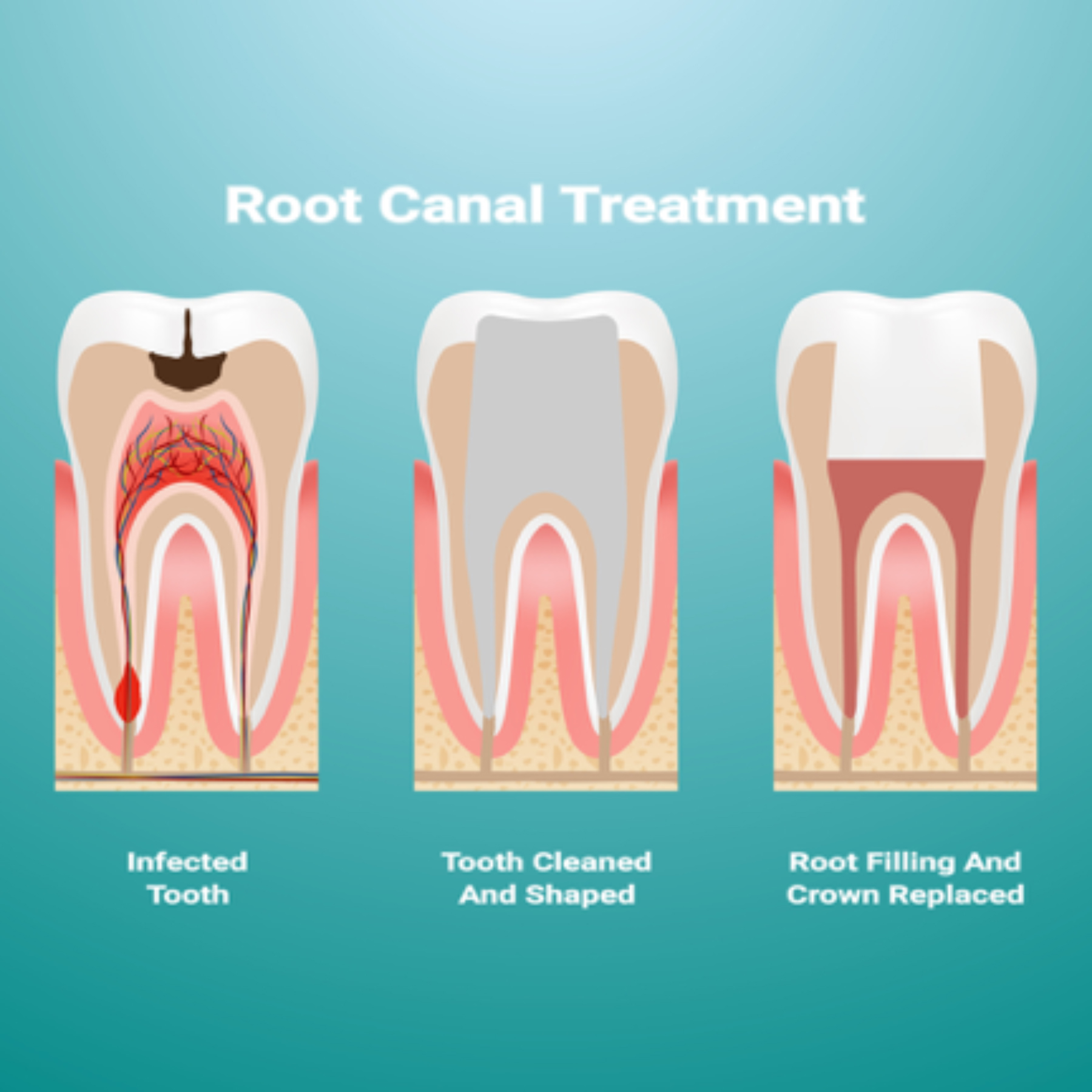 Root Canal Knoxville Therapy in One Visit | Dr  Jack Haney